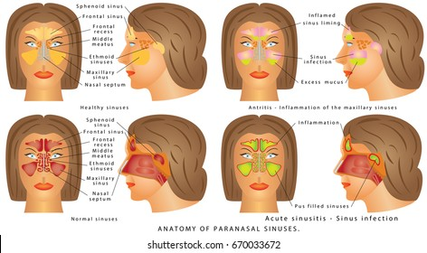 Nasal sinus. Human Anatomy - Sinus Diagram. Anatomy of the Nose. Nasal cavity bones. Anatomy of paranasal sinuses. Sinusitis - Antritis - It is the inflammation of the maxillary sinuses