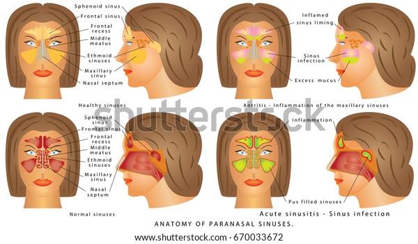 Nasal Sinus Human Anatomy Sinus Diagram Stock Vector  Royalty Free  670033672