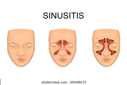 nasal sinus. inflammation