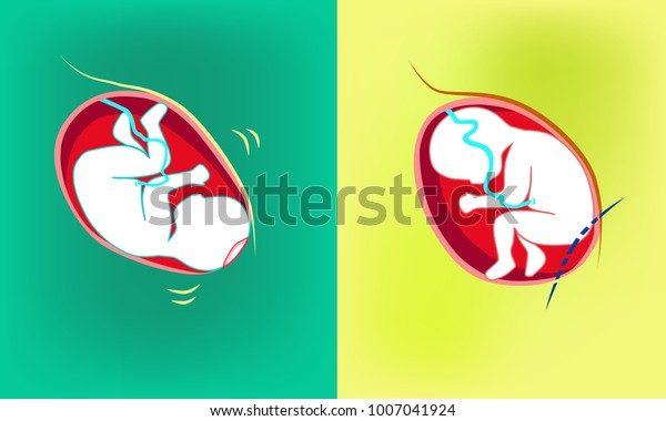 Natural Birth Vs Cesarean Section Royalty Free Stock Image