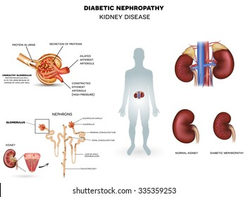 Nephropathy, kidney disease caused by Diabetes detailded poster.