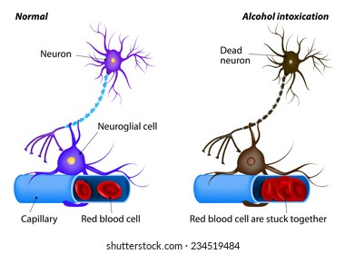 nerve damage caused by heavy drinking. Alcohol dissolves the protective layer of erythrocytes and the RBCs begin to adhere to each other. oxygen to the neuron is no longer supplied. Neuron dies