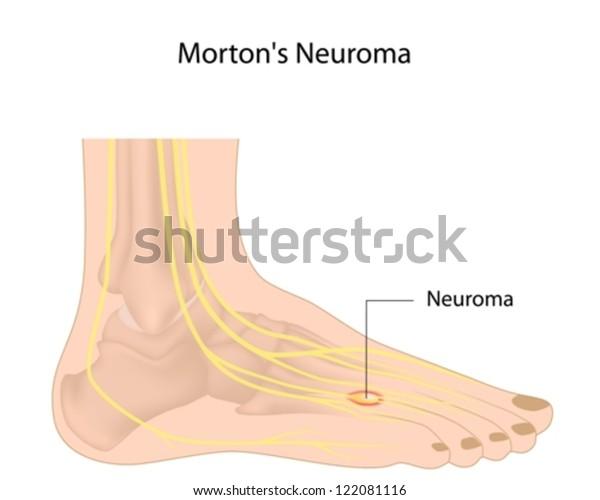 Morton�s neuroma