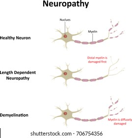 Neuropathy Labelled Illustration