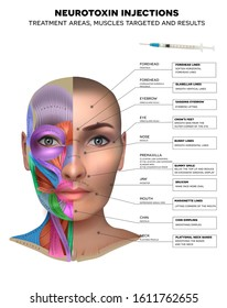Neurotoxin injections treatment areas, muscles targeted and results. Muscles structure of the female face and neck, each muscle with name on it.
