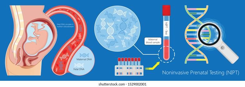 Noninvasive prenatal testing NIPT screening genetic disorders bloodstream cfDNA lab plus diagnostic diagnose 21 18 13 cell free chromosomal NIFTY exam simple pregnancy