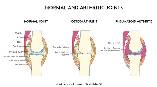Normal and arthritic human joints. Types of arthritis. Minimal flat vector illustration for print or web