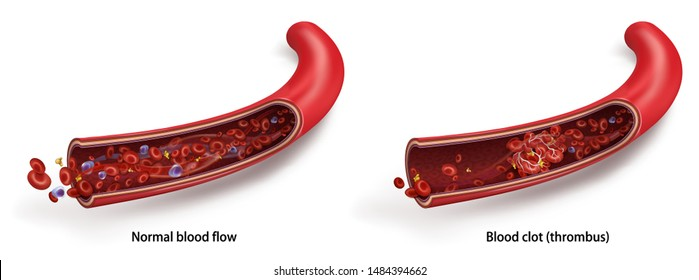 Normal blood flow. Blood clot (thrombus). Vector 3d illustration isolated on white transparent background.