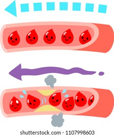 Normal blood vessels and clogged blood vessels