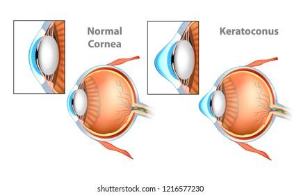 Normal Cornea and Keratoconus (KC) Cornea.
