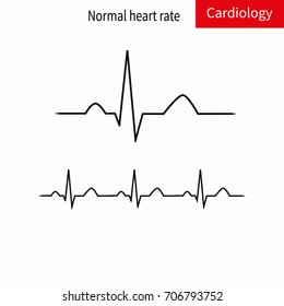 Normal ECG complex and normal sinus rhythm.Vector illustration.