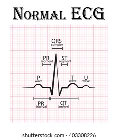 Normal ECG (Electrocardiogram) (P wave , PR segment , PR interval , QRS complex , QT interval , ST segment , T wave , U wave)