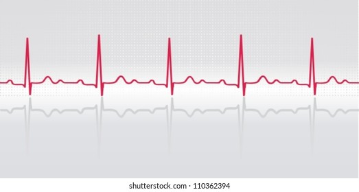 Normal electrocardiogram human in the background on the polished surface. Simulation of volume. Vector illustration.