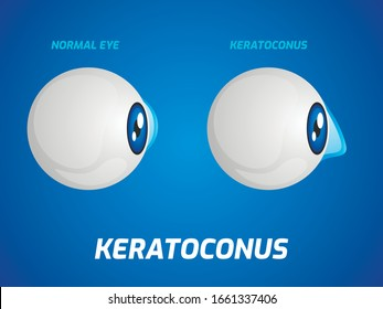 Normal eye and keratoconus concept. Vector illustration.