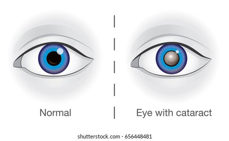 Normal eye and lens clouded by cataract. Illustration about eyesight.