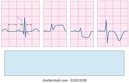 abnormal ekg images, stock photos & vectors | shutterstock