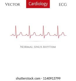 Normal heart rhythm( normal sinus rhythm). Vector illustration.