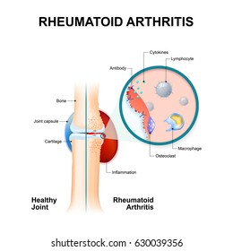 normal joint and one with rheumatoid arthritis. Rheumatoid Arthritis (RA) is an auto immune disease and inflammatory type of arthritis that usually affects joints.