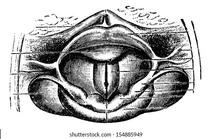 Normal Larynx, as seen through a Laryngoscopic Mirror, vintage engraved illustration. Usual Medicine Dictionary by Dr Labarthe - 1885