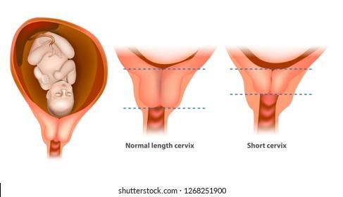 Normal length cervix and short cervix in Pregnancy. The cervix or cervix uteri