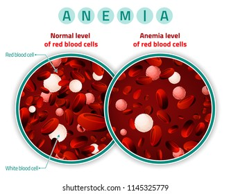 Normal level of red blood cells in comparison with iron deficiency anemia level. Medical and healthcare concept. Vector illustration isolated on a white background.