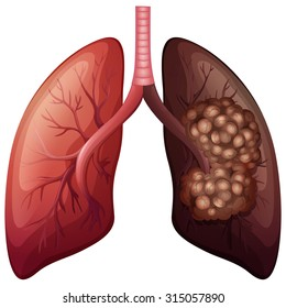 Normal lung and lung cancer illustration