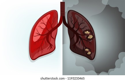 Normal lung vs Lung cancer(main causes of smoking)