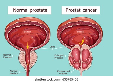 Prostate gland images stock photos vectors shutterstock normal prostate and acute prostatitis medical illustration ccuart Image collections