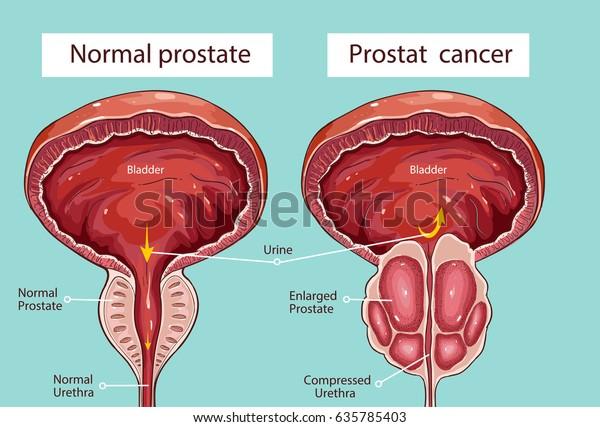 glándulas de prostatitis