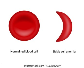 Normal red blood cell and Sickle cell anemia, Scientific study