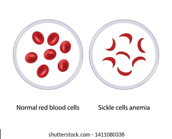 Normal red blood cells and sickle cells anemia in microscope, vector illustration eps10
