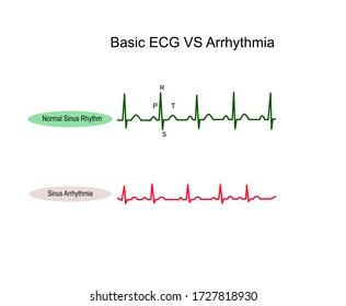 Normal Sinus Rhythm ECG and Sinus Arrhythmia ,NSR all complex evenly space P wave have QRS Complex rate 60-100 bpm but Sinus arrhythmia all complex normal but rhythmically irregular