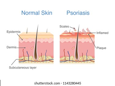 Normal skin layer and skin when plaque psoriasis signs and symptoms appear. illustration about dermatology diagram.