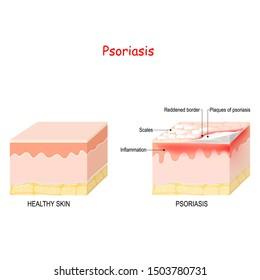 normal skin and psoriasis. signs and symptoms skin disease.