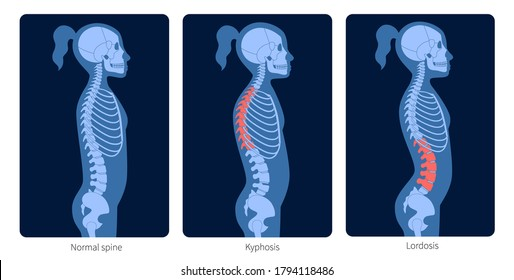 Normal spine, lordosis and kyphosis. Scoliosis in child body. XRay flat vector illustration. Backbone and skeleton anatomy in girl silhouette. Orthopedic poster. Medical exam in spinal pain center