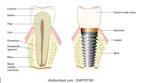 Normal tooth anatomy and custom-made crown with metal implant