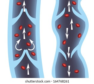 Normal vein and varicose vein illustration. Venous Insufficiency.
