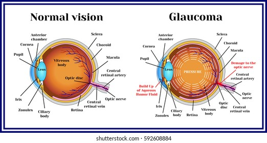 Normal vision. Glaucoma. Chronic eye pathology.