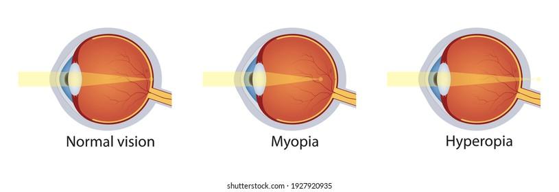 Normal vision, hyperopia, myopia. Set of vision disorders. Anatomy of eyeball defect. Vector illustration