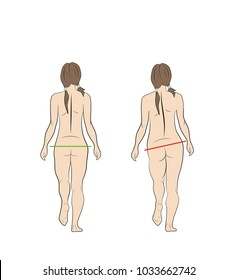 normal and wrong gait of a woman. medical recommendations. vector illustration.