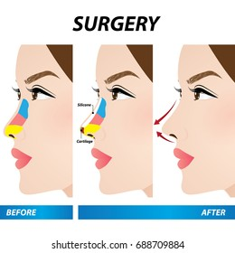 nose beauty surgery , rhinoplasty vector illustration