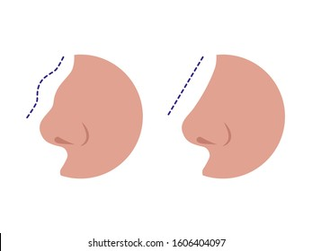 Nose before and after rhinoplasty correction isolated on a white background. Comparison of female nose after plastic surgery. Vector illustration of a rhinoplasty concept.
