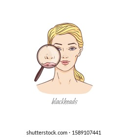 Nose blackheads in looking glass - blonde woman with skin condition problem shown through magnifying glass. Isolated flat vector illustration on white background,