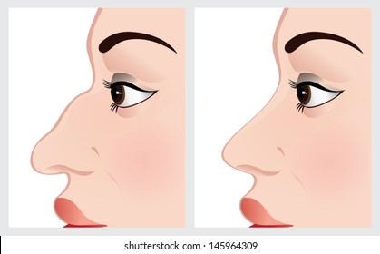 Nose reshaping before and after surgery. Vector illustration on a white background. File is not flattened.