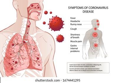 Novel coronavirus (2019-nCoV) stop. Human MERS-Cov symptoms risk factors. Virus outbreak spread pandemic. Health and medical testing, screening. Respiratory, breathing. Vector diagram infographic