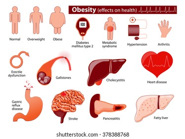 Obesity and overweight infographic. Effects on health.  Medical infographic. Set elements and symbols for your design.