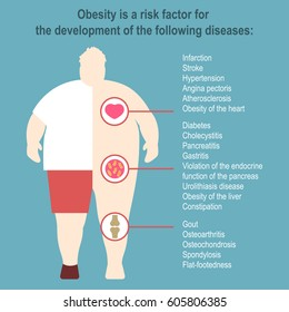 Obesity Vector illustration Poster template The effect of obesity on the health and human internal organs Medical poster in flat design