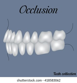 occlusion side view - bite, closure of teeth - incisor, canine, premolar, molar upper and lower jaw. Vector illustration for print or design of the dental clinic
