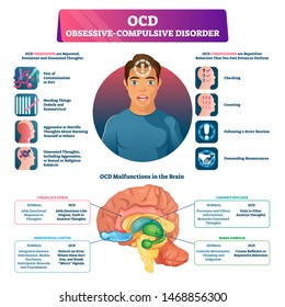 OCD obsessive compulsive disorder labeled explanation vector illustration. Medical disorder and mental illness infographic with symptoms, medical brain changes scheme and disease behavior indication.