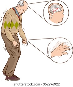 Old man with Parkinson symptoms difficult walking
